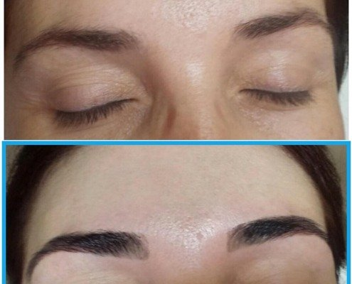 Before & After after Brow Treatment